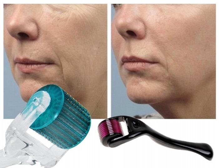 ما فوائد ديرما رولر للشعر وللوجه وطريقة استخدامها وسعره